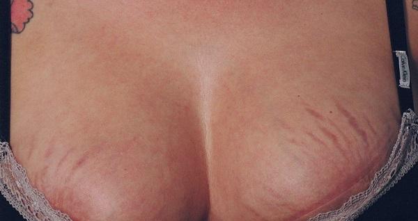 Появились растяжки на груди - методы как их убрать