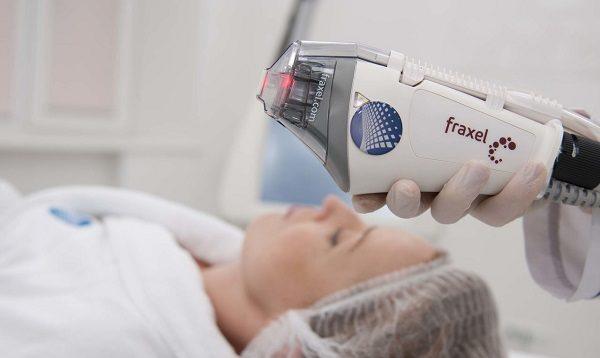 Виды лазерного оборудования