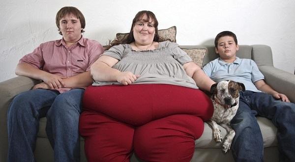 Что такое ожирение 3 степени