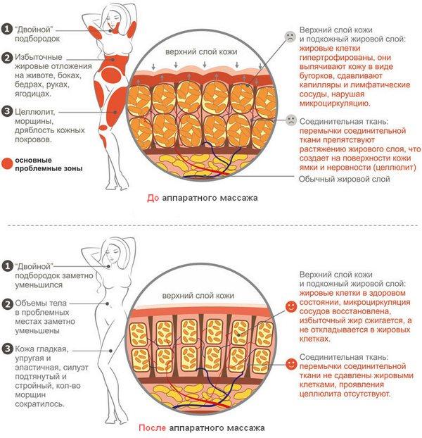 Аппаратный массаж для похудения: можно ли постройнеть без диет и физнагрузок?