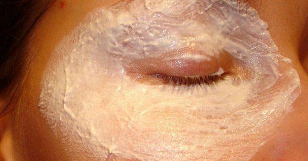 Боремся с мимическими морщинами вокруг глаз