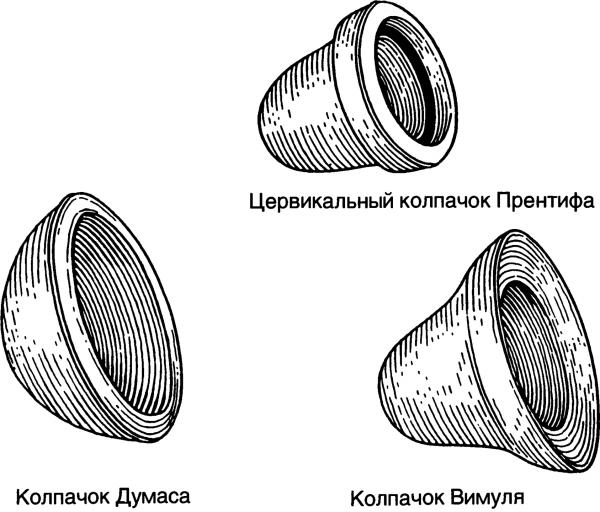 Цервикальный противозачаточный колпачок: редкий и оригинальный контрацептив