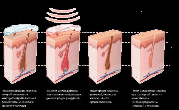 Диодная лазерная эпиляция: всё о процедуре