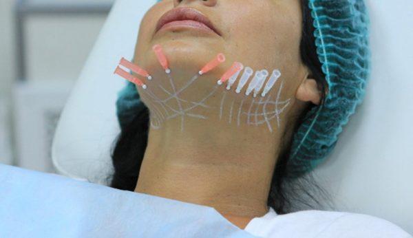 Эффективные способы борьбы с морщинами на шее