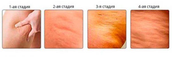 Эффективный массаж против целлюлита на бёдрах, ногах и ягодицах
