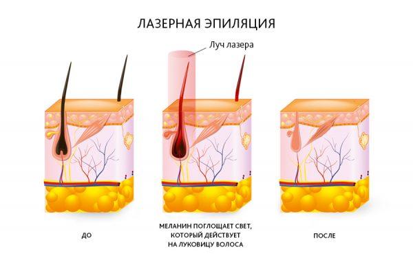 Электрическая и лазерная эпиляция: сходства и различия