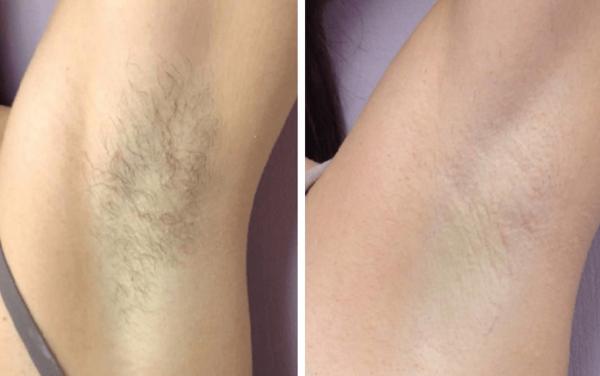 Электроэпиляция области подмышек: избавление от нежелательных волос надолго