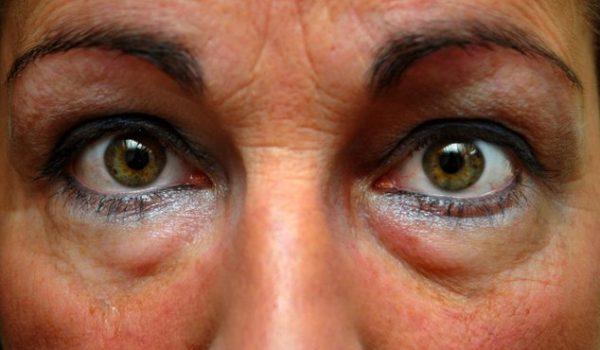 Как быстро избавиться от мешков и синяков под глазами
