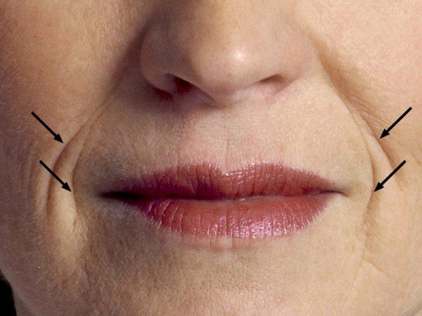 Как избавиться от морщин вокруг рта и губ