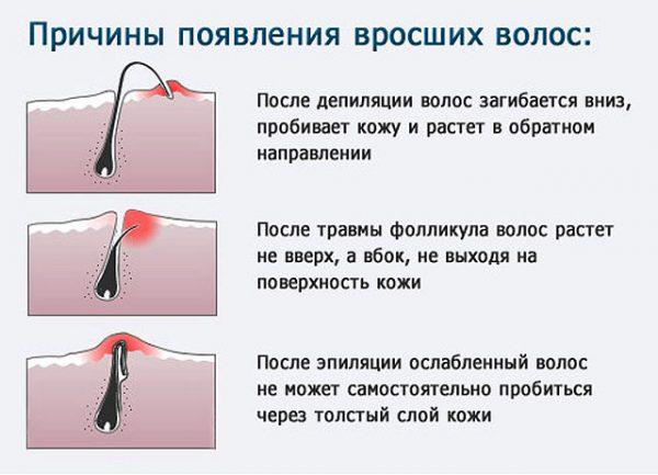 Как избавиться от вросших волос в зоне бикини