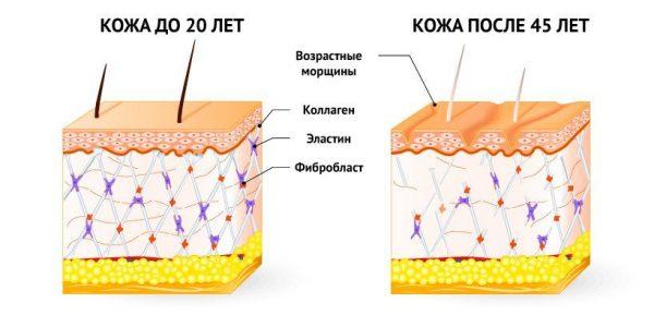 Как ретиноевая мазь разглаживает морщины