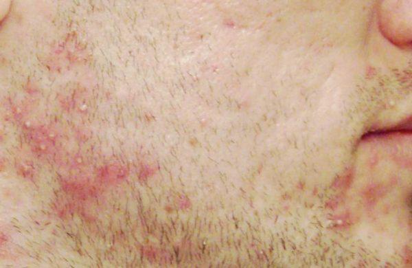 Как снять раздражение после бритья