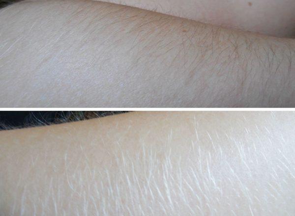 Как удалить волосы на руках с помощью популярных методов депиляции