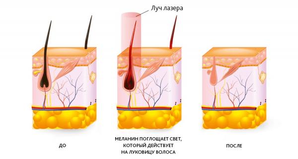 Лазерное удаление волос в домашних условиях — бытовые эпиляторы