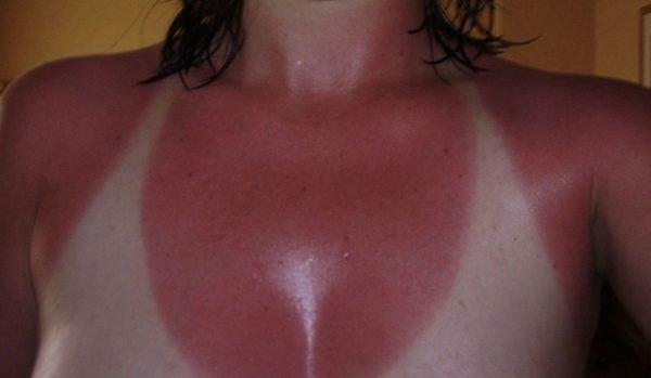 Можно ли сгореть в солярии и что делать, если покраснела и облазит кожа