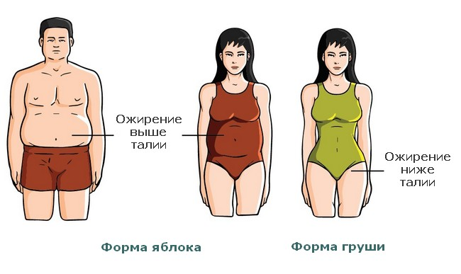 Обзор классификаций ожирения: его типы, виды и степени в зависимости от разных характеристик заболевания