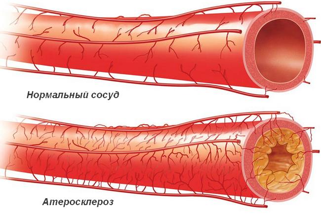 Очищение сосудов от холестериновых бляшек: обзор средств и методик