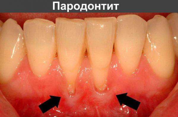 От чая зубы темнеют, а от масла чайного дерева светлеют: используем эфир правильно