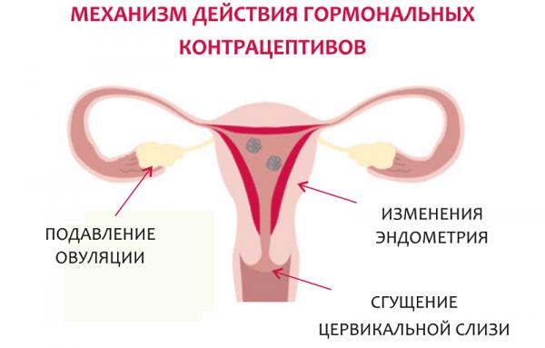 Противозачаточные импланты: как работает современное средство контрацепции