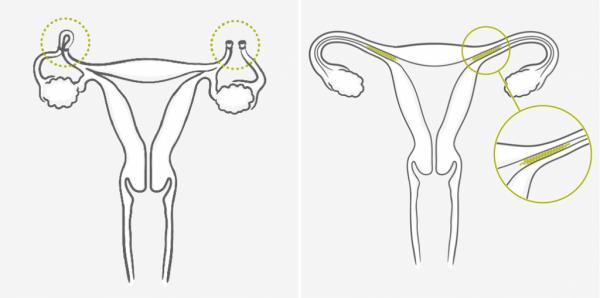 Противозачаточные средства с учётом возраста: как предохраняться женщине после 35 лет