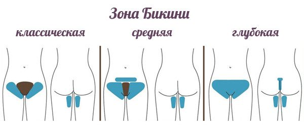Шугаринг интимной области: особенности и техника процедуры