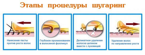 Шугаринг: сахар против усиков