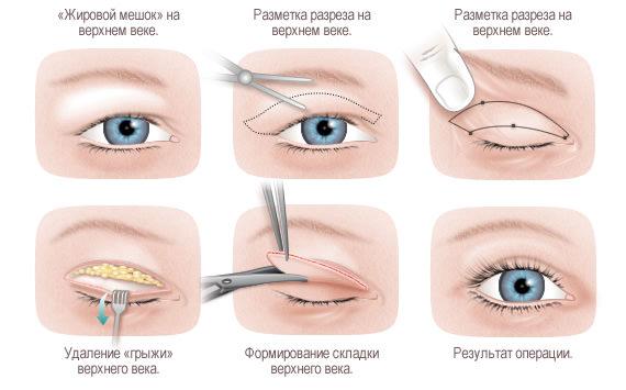 Способы борьбы с морщинами вокруг глаз