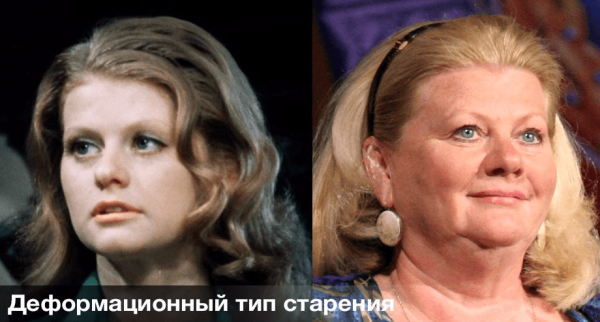 Старение кожи лица: разновидности и профилактика