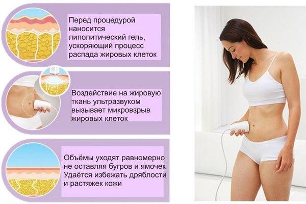 Ультразвуковая кавитация для похудения: как проводится и возможна ли в домашних условиях – лечение
