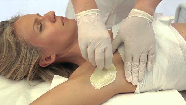 Восковая депиляция подмышек: путь к гладкости кожи