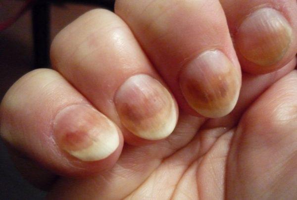 Возвращаем ногтям и кутикуле здоровье и красоту при помощи натуральных эфиров