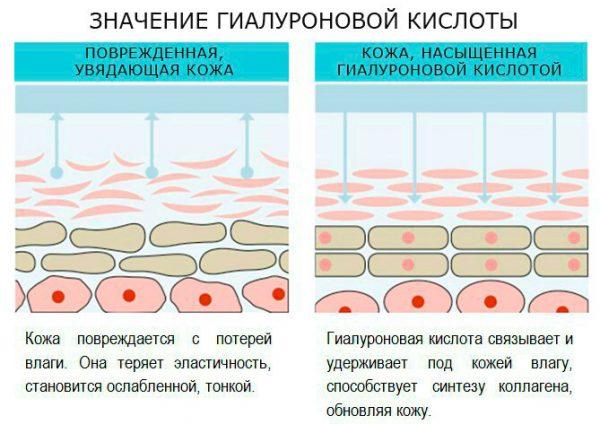 Выбираем крем с гиалуроновой кислотой: что нужно знать об антивозрастной косметике