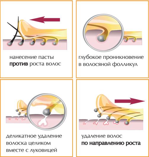 Депиляция бикини в домашних условиях: подробная инструкция