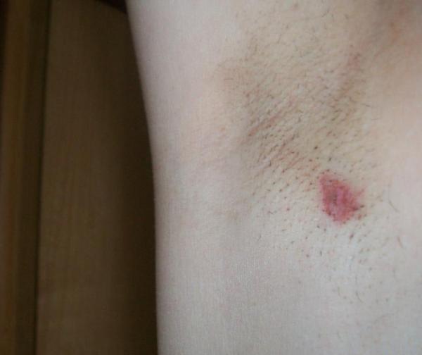 Домашняя эпиляция с ЭЛОС: избавляемся от нежелательных волос без салонных процедур
