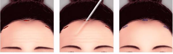 Эндоскопическая подтяжка лба: противопоказания и результаты операции