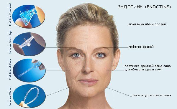 Эндоскопическая подтяжка лица: современный метод борьбы со старением