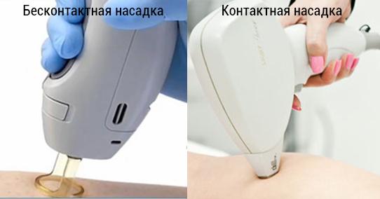 Фотоэпиляция VS лазерная эпиляция — что выбрать