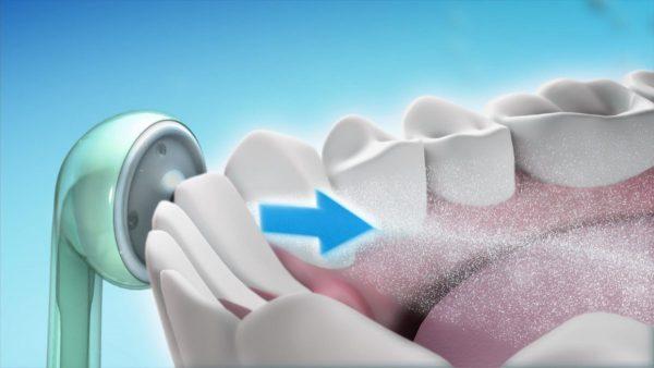 Ирригатор или зубной центр: обзор лучших моделей линейки Professional Care от Braun