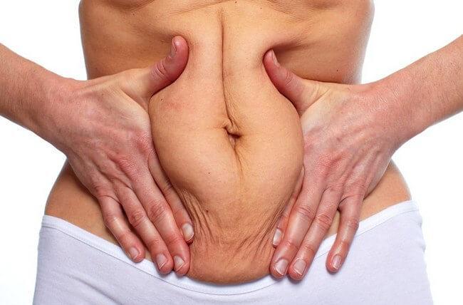 Как подтянуть кожу после похудения: лучшие способы сделать тело идеальным