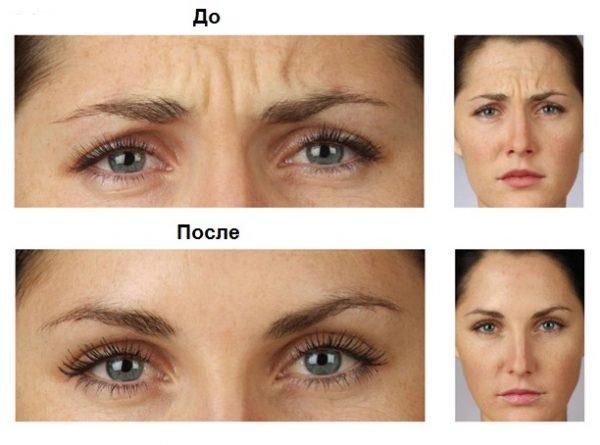Как разгладить морщины на хмуром челе