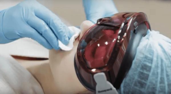 Лазер против гусарских усов: эпиляция волосков над верхней губой