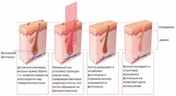 Лазерная эпиляция зоны бикини: избавиться от волос надолго