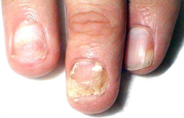 Масло чайного дерева для ногтей и кутикулы