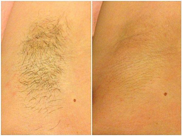 Очищаем кожу от воска после депиляции просто и безболезненно: проверенные способы