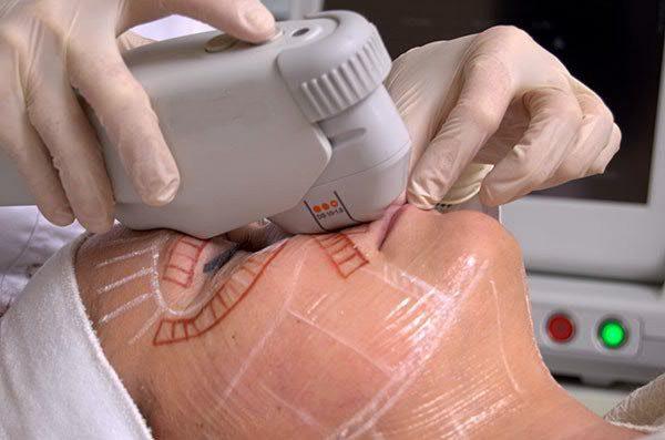 Особенности ультразвуковой подтяжки лица в косметологической клинике и дома