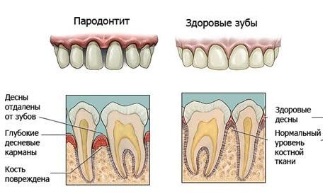 Плазмолифтинг — новое слово в стоматологии