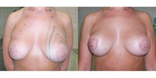 Подтяжка груди без операции — с помощью нитей