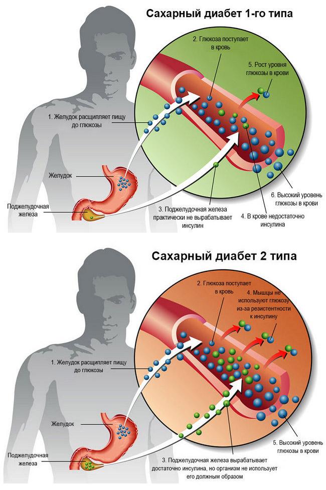 Полная информация о сахарном диабете: как распознать, лечить и предупредить