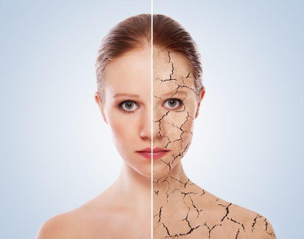 Роскошный загар: как подготовить кожу к солнечным ваннам