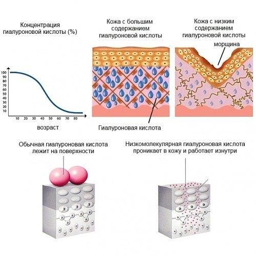 Сила гиалуроновой кислоты: вызов носогубным складкам